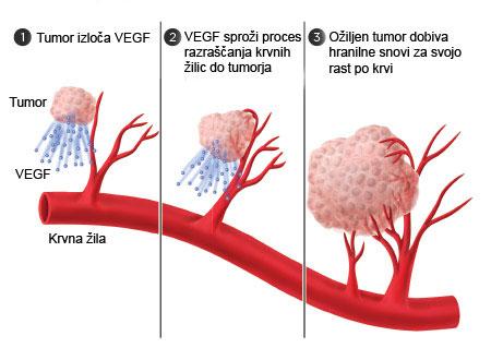 Angiogeneza - VEGF sproži proces razraščanja krvnih žilic do tumorja